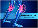 Orthopedic Knee Templates For Powerpoint