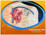 Pacemaker Implantation Beside Heart Templates For Powerpoint
