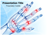 Hand Arthritis Templates For Powerpoint