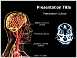 Encephalopathy Templates For Powerpoint