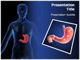 Ulcer Symptoms Templates For Powerpoint