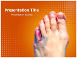 Toe Injuries Templates For Powerpoint