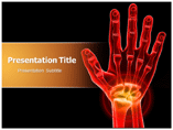 Carpal Tunnel Syndrome Templates For Powerpoint