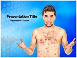 Chicken Pox Symptoms Templates For Powerpoint