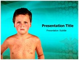 Rubella Templates For Powerpoint