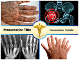 Inflammatory Arthritis Templates For Powerpoint