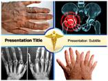 Inflammatory Arthritis Templates For Powerpoint