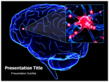 California Encephalitis Templates For Powerpoint