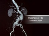 Aneurysm Templates For Powerpoint