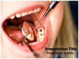 dental caries powerpoint template