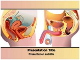 Prostate Cancer Templates For Powerpoint